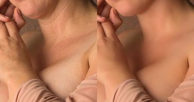 dubbele kin en huidskleur